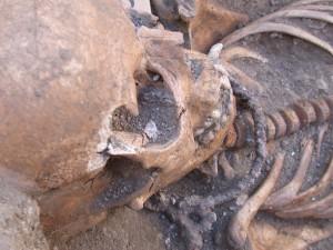 Scheletro di una 15enne con collare di ferro